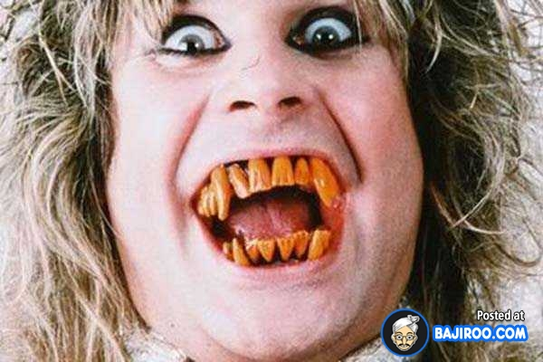 funny teeth weird pics images free Weird Teeth Funny Picture 40 Pics of People With Funny Teeth