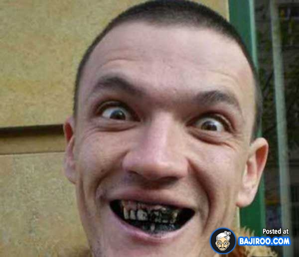 40 Pics Of People With Funny Teeth Mojly